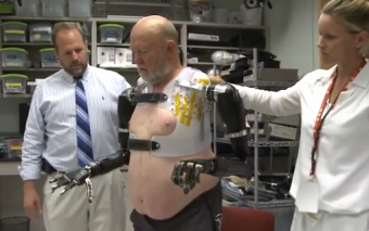 Man Controls 2 Prosthetic Arms Using His Mind